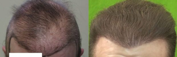 Bad FUE Hair Restoration Surgery In A Young Patient: Before and after BHT repair using DrUGraft Revolution advanced FUE with beard, nape and chest hair donors