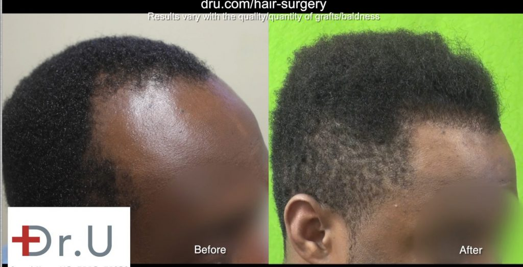 UGraft follicular Unit Extraction works for all curly hair including all of African Americans, patients due to a new patent pending new invention by Dr U