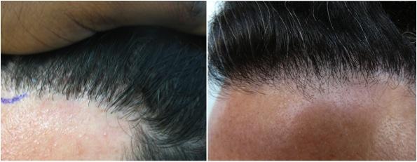 После родов через 5 месяцев сильно выпадают волосы клочьями остаются залысины