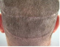The Truth About Strip Surgery Hair Transplantation Procedure - strip scar