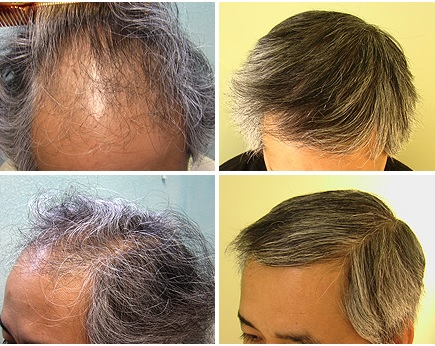Before and After Asian FUE Hair Transplant - 3000 Grafts
