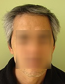 Asian FUE Hair Transplant Patient