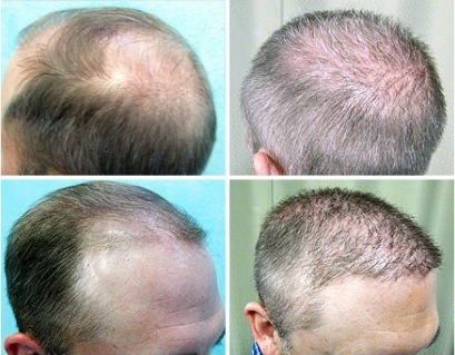 Baldness Cure With Body Hair Transplant View Of Crown And Temples Bht Surgery Results