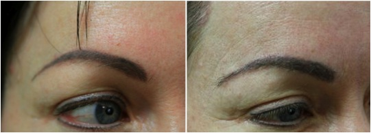 closeup eyebrow transplant results nape hair