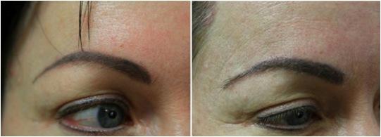 closeup eyebrow transplant results nape hair