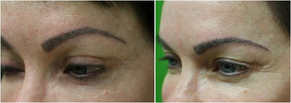 excellent eyebrow transplant results on patient