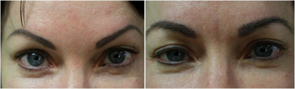 Eyebrow Transplant Using uGraft in Los Angeles results covers brow tattoos