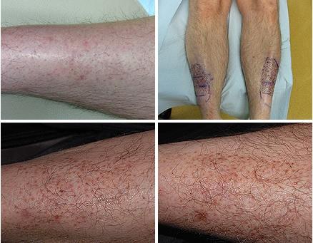 restoration of leg hair