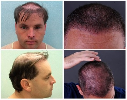 UGraft Hair Transplant repair Using 19500 Grafts Ends Hairpiece Usage