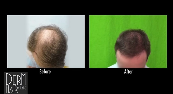 Crown Baldness Reversed| BHT Surgery - Patient Results