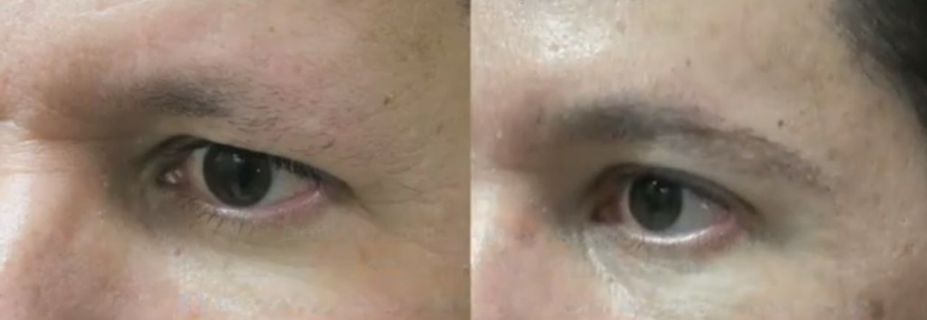 Eyebrow transplant results -improved definition