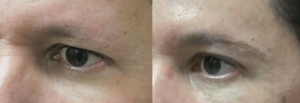 DermHair Clinic Eyebrow Transplant Results 2
