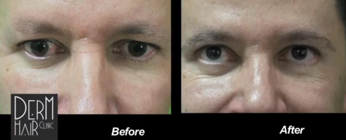 Eyebrow Transplant Using UGraft - DermHair Clinic Los Angeles