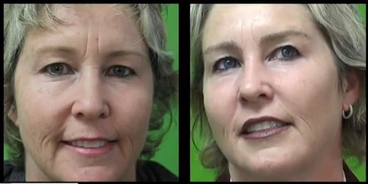 Eyebrow Restoration by Dr. U Before and After