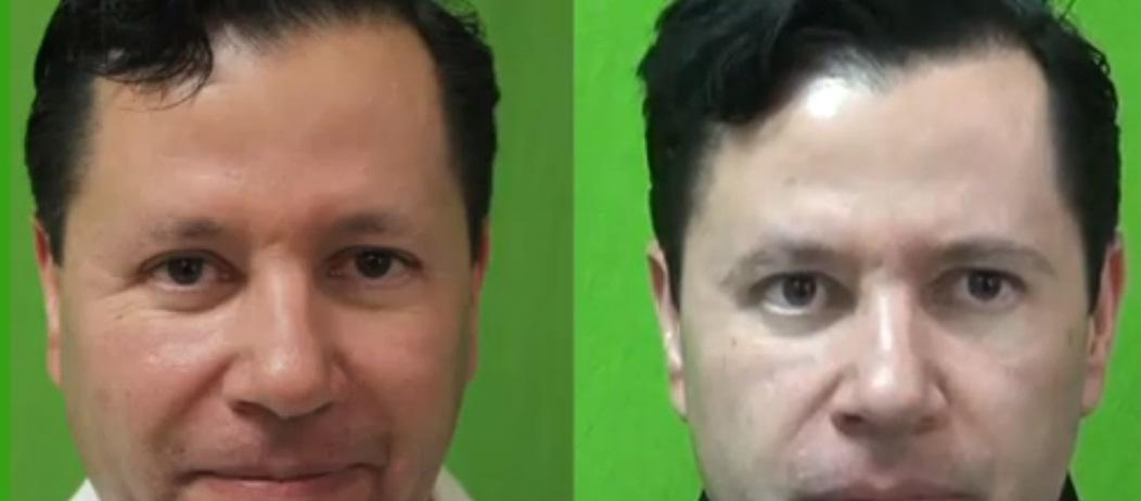 Eyebrow, Facial Hair and Body Hair Restoration - DermHair ...