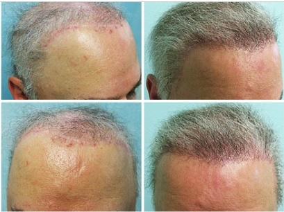 Hair Restoration Testimonials by The Physician - Body Hair Transplant repair Results