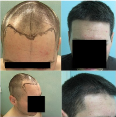 FUE for Level Three Hair Loss