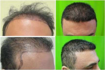 FUE hair transplant repair | beard hair grafts | impossible case