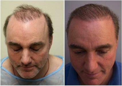 hair restoration 3