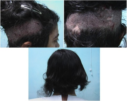 female patient hair restoration | Lupus