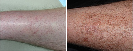 hair transplant for the legs | restore leg hair