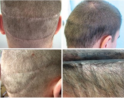 Hair Transplant Strip Surgery Scar Repair Using UGraft FUE before and after photos