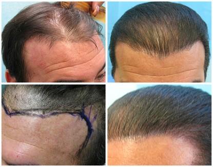 Hair Transplant Repair Using UGraft in Los Angeles : Repair of Temporoparietal-Occipital Flaps (aka, Juri flap or Flemming Mayer flaps)