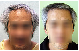 Hair Restoration Patient in Los Angeles
