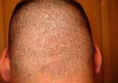 The following picture shows a scalp donor area as it appears at only 6 days after Dr. Umar removed 2300 grafts by FUE