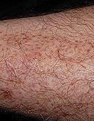 Body Hair to Leg Hair Transplantation