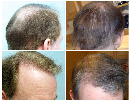 UGraft Advanced FUE Using 3400 grafts from Nape and Beard Hair for Depleted Hair Donor