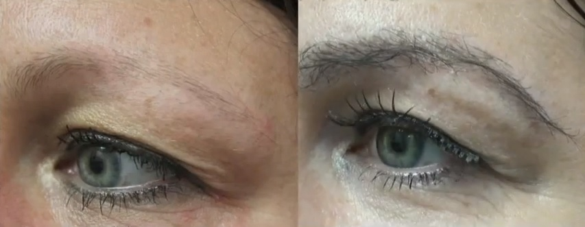 Eyebrow Transplant Results|Nape Hair Grafts - Before & After