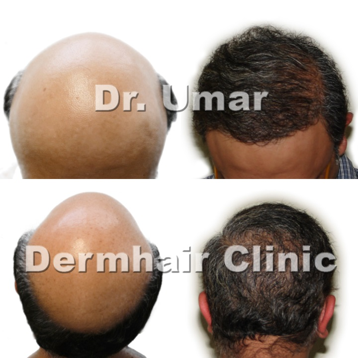 Los Angeles UGraft follicular unit extraction using 12000 combination head and body hair grafts for severe level 7 baldness - Before and after photos
