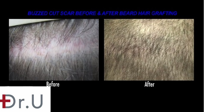 Repair of Strip Scar  Before & After Insertion of Beard Hair