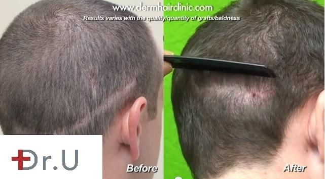 Large Strip Scar| Repair With Head Donor Hair and FUE