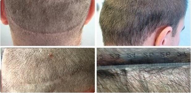 Strip Scarring| Repair With Beard Hair Grafts