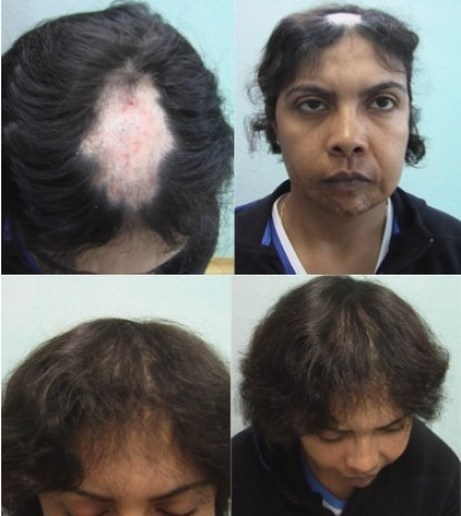 Hair transplant results of a woman suffering hair loss from lupus.