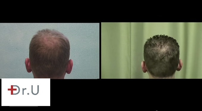 FUE Crown Hair Restoration| Before and After - 18 Month Point