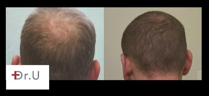 Crown Hair Restoration | Follicular Unit Extraction