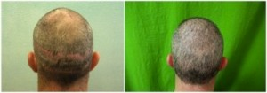 Hair Transplant Surgeon and FUE