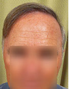 Reversal of Grey Hair After Transplant