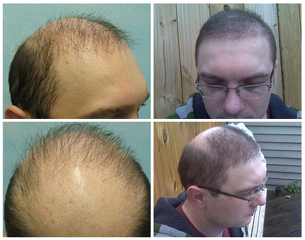 Hair transplant scar shaved head
