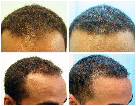 Hairline Restoration For African Americans Body Hair Grafts