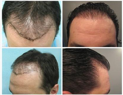 Hair Restoration Repair Using Follicular Unit Extraction