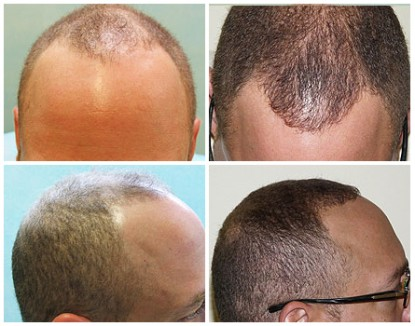 African American FUE Hair Transplant Using 1200 grafts , before and after photos