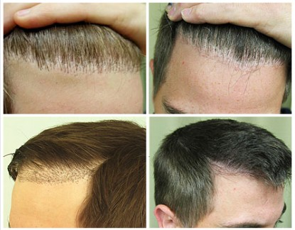 Hairline Repair Surgery Using by UGraft FUE before and after photos