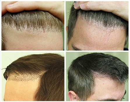 Hairline Repair Surgery Using By Ugraft Fue