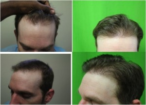 FUE hair transplant done by Dr. Umar