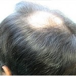 Empty crown due to male pattern baldness.
