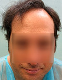 Crown Restored with FUE Grafts